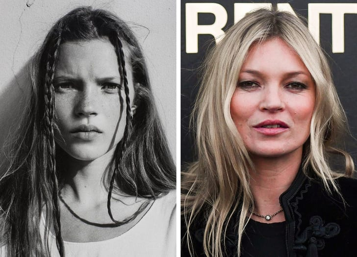 What Famous Celebrities Look Like Before They Become Famous